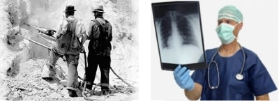 Asbestosis Compensation
