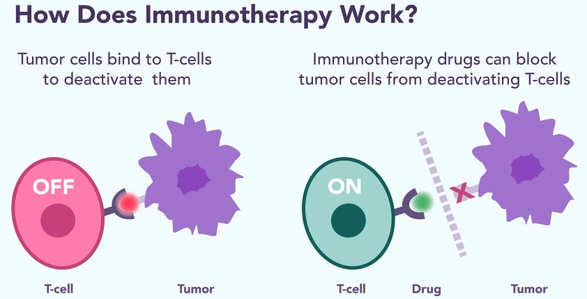 Investigating the cost of Immunotherapy to Treat Mesothelioma