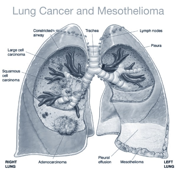 chemotherapy treatment for mesothelioma