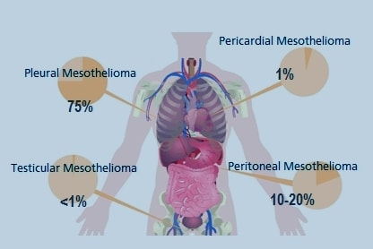 Mesothelioma Compensation Cases